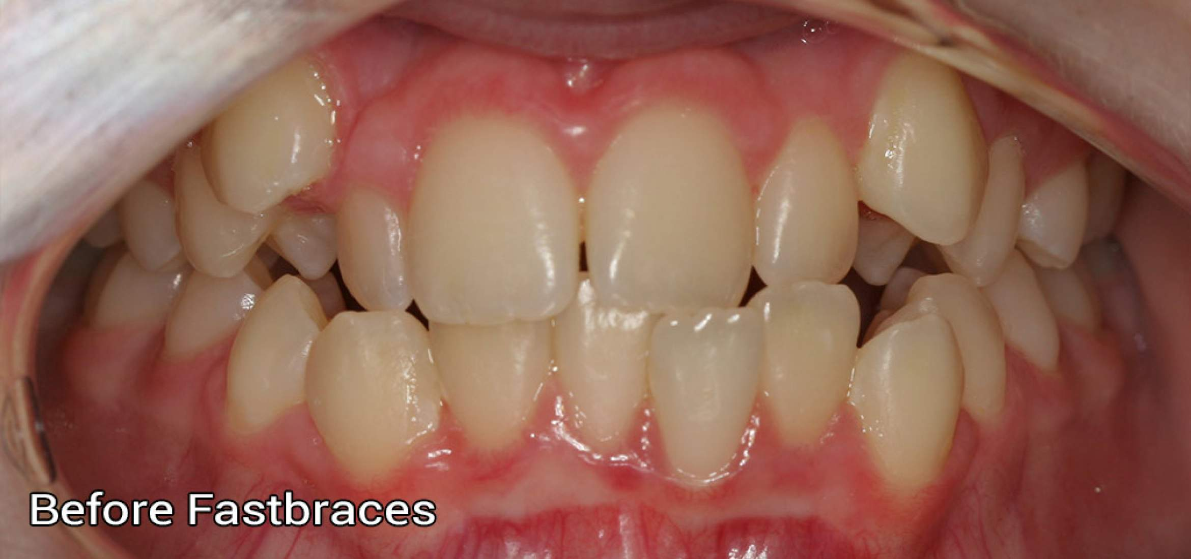 Fastbraces1 Before Photo