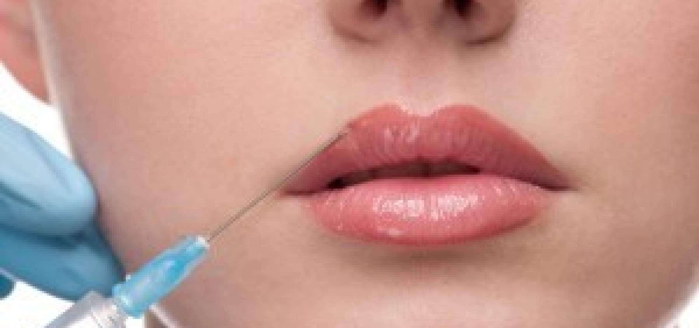 Photo of lip injection