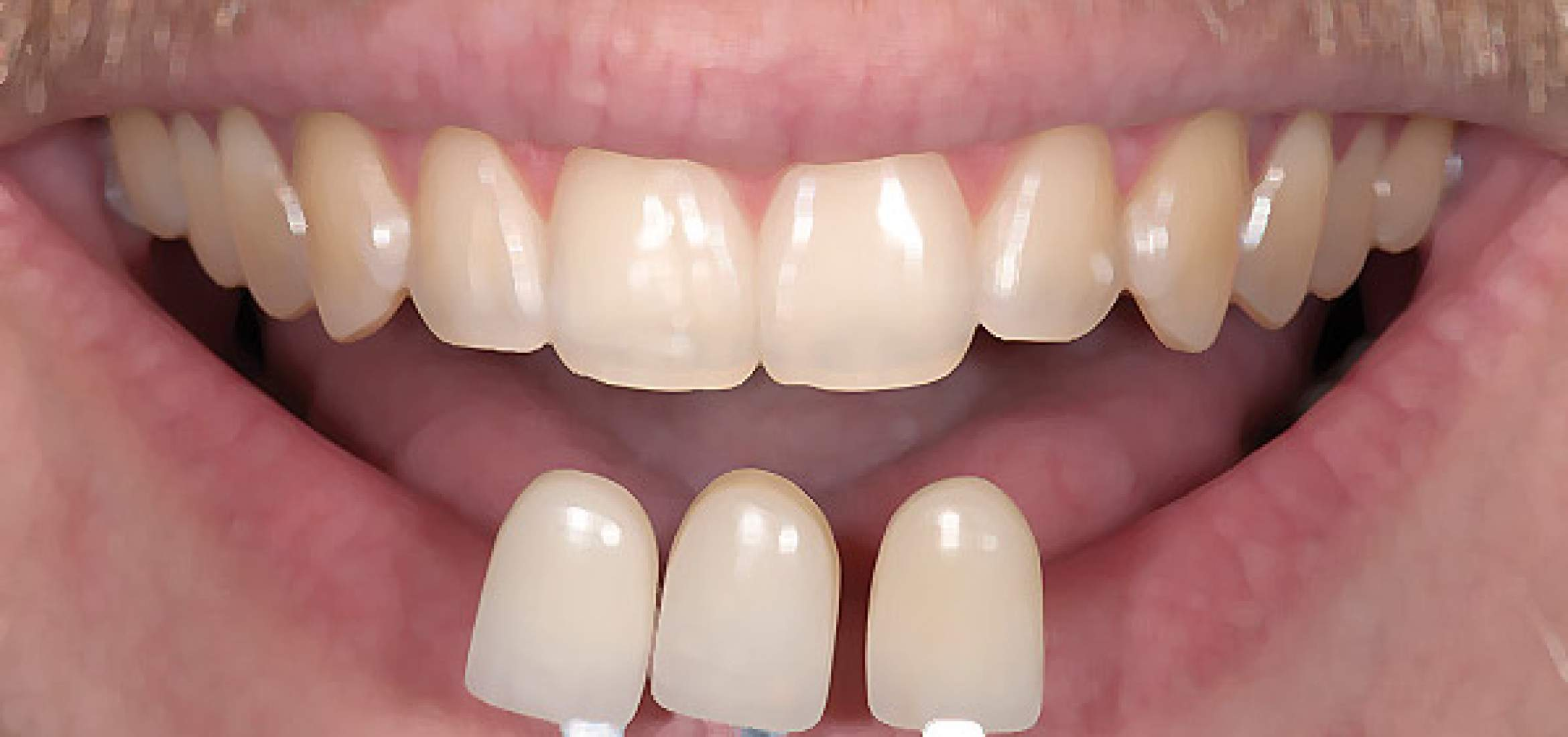 Tooth colour