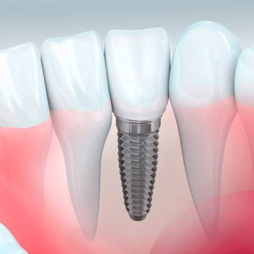 Dental Implants Gold Coast