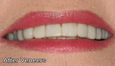 Composite veneers1 after photo