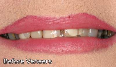 Composite veneers1 before photo