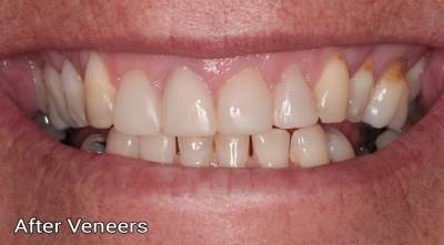 Composite veneers2 after photo