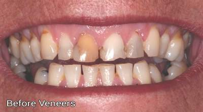 Composite veneers 2 before photo