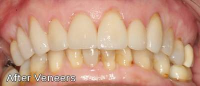 Porcelain Veneers1 - after Photo