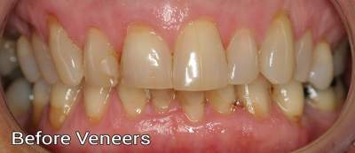Porcelain Veneers1 - before photo