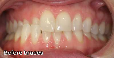 Braces Before